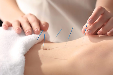 Acupuncture Banner