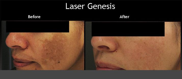 Laser Genesis Before After 3