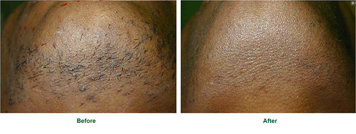 Laser Hair Removal Before After 1